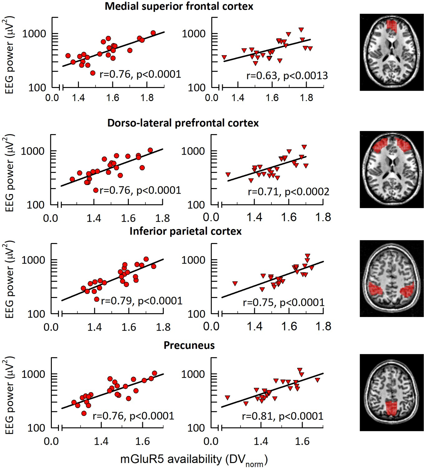 Cerebral Mglur5 Availability Contributes To Elevated Sleep Need And 12 Lead Motor Delta Run Wiring Diagram In Fronto Parietal Network Correlates With Eeg 1 Hz Activity Nrem