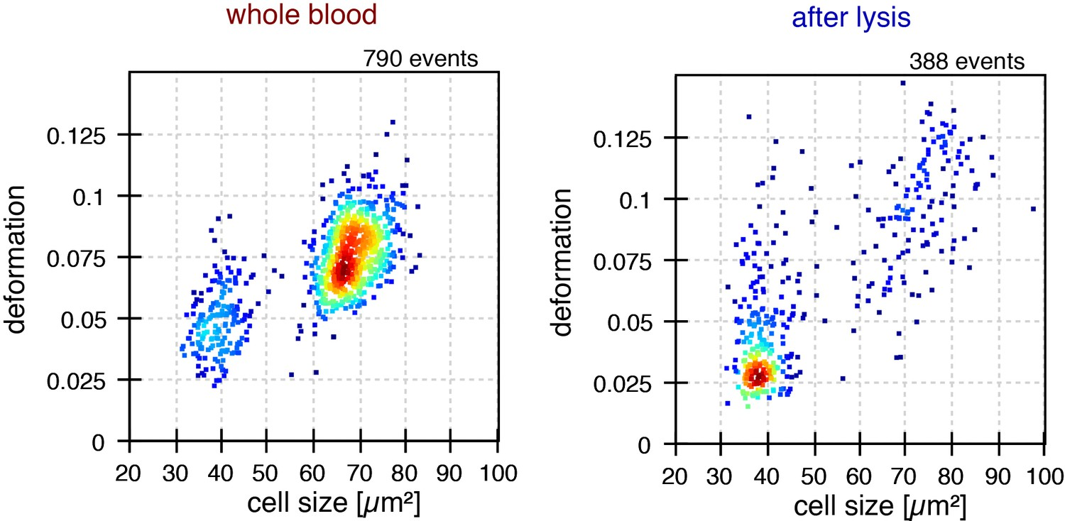 Detection Of Human Disease Conditions By Single Cell Morpho White Blood Labeled Diagram When Cells Invade Effect Red Lysis On Rheological Properties Leukocytes