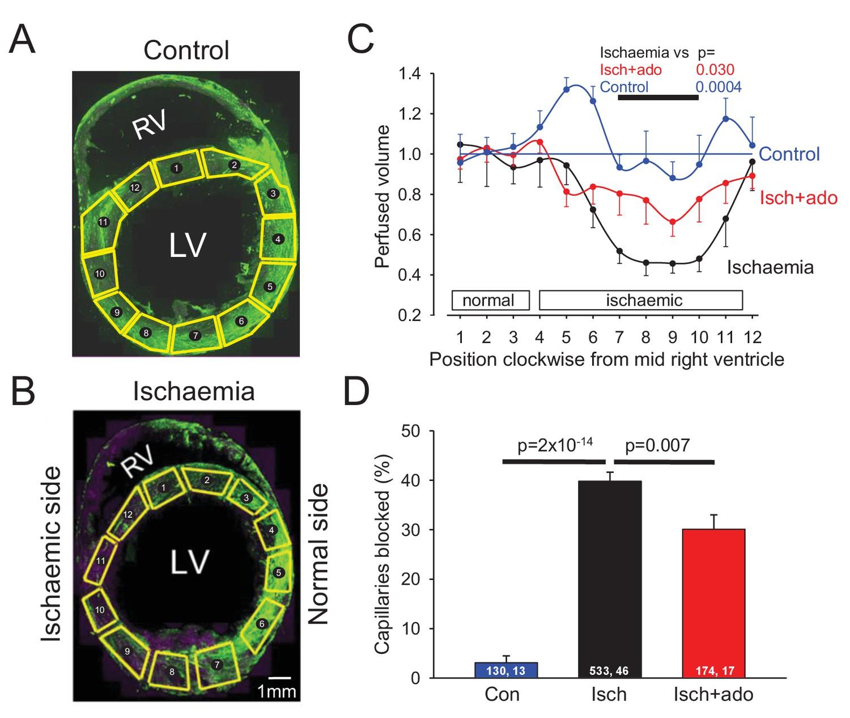 Capillary pericytes mediate coronary no-reflow after