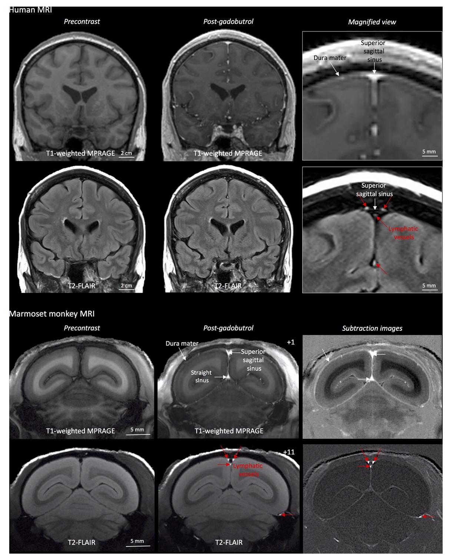 Human and nonhuman primate meninges harbor lymphatic