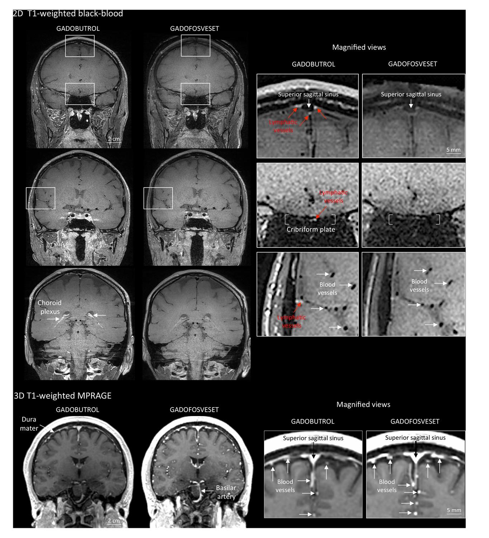 Human and nonhuman primate meninges harbor lymphatic vessels that ...