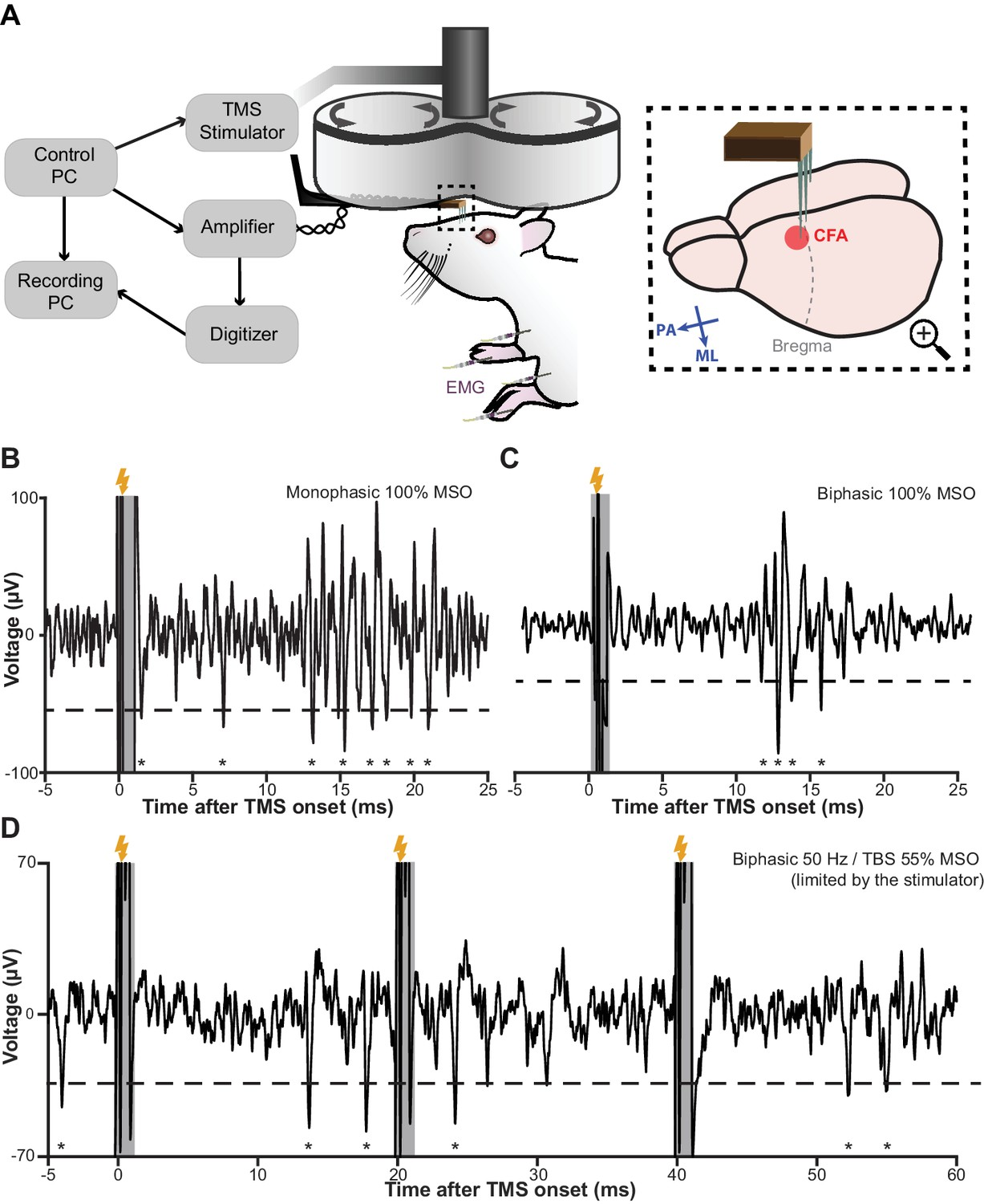 Lifting The Veil On Dynamics Of Neuronal Activities Evoked By This Circuit Will Remove Transient Spikes And Contact Bounces From Tms Eep Recording Setup Rapid Signal Recovery Under Worst Case Stimuli