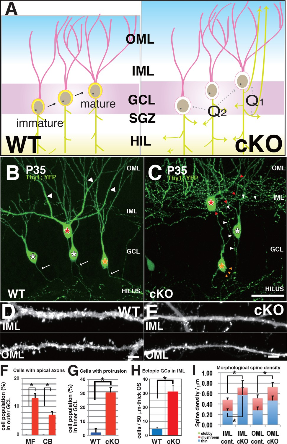 Kif2a Regulates The Development Of Dentate Granule Cells And