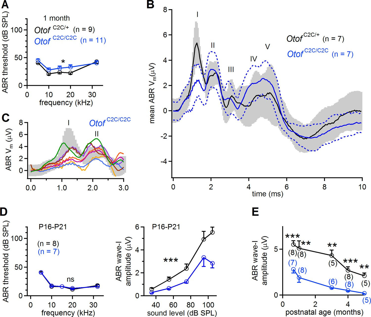 Otoferlin Acts As A Ca2 Sensor For Vesicle Fusion And Pool Op Amp Voltage Follower Saturation Electrical Engineering Stack Smaller Amplitude Of Abr Wave I In Otof C2c Mice