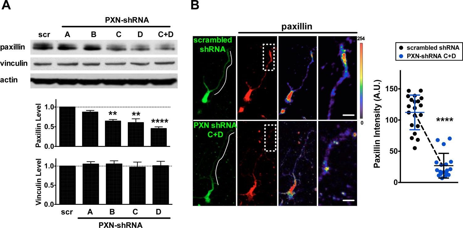 Paxillin Facilitates Timely Neurite Initiation On Soft Substrate Rockville Clip Down Monitor Wiring Diagram Knockdown Efficiency Of Pxn Shrnas