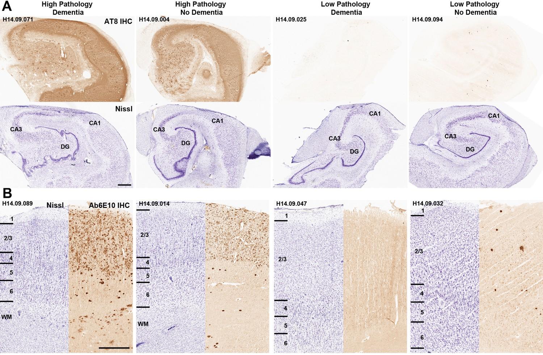Neuropathological and transcriptomic characteristics of the