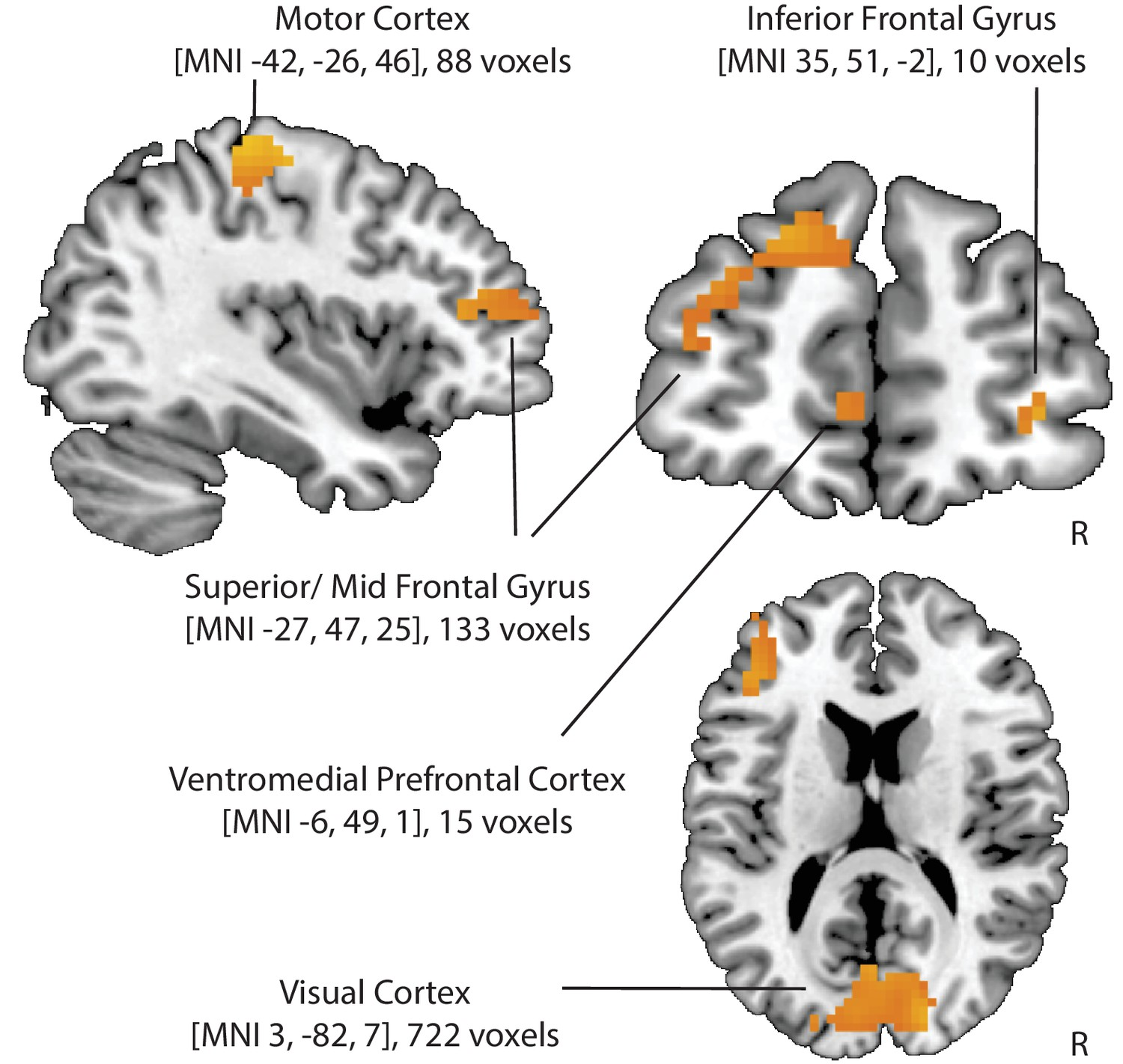 Brain Representations Of Social >> Cognitive Regulation Alters Social And Dietary Choice By Changing