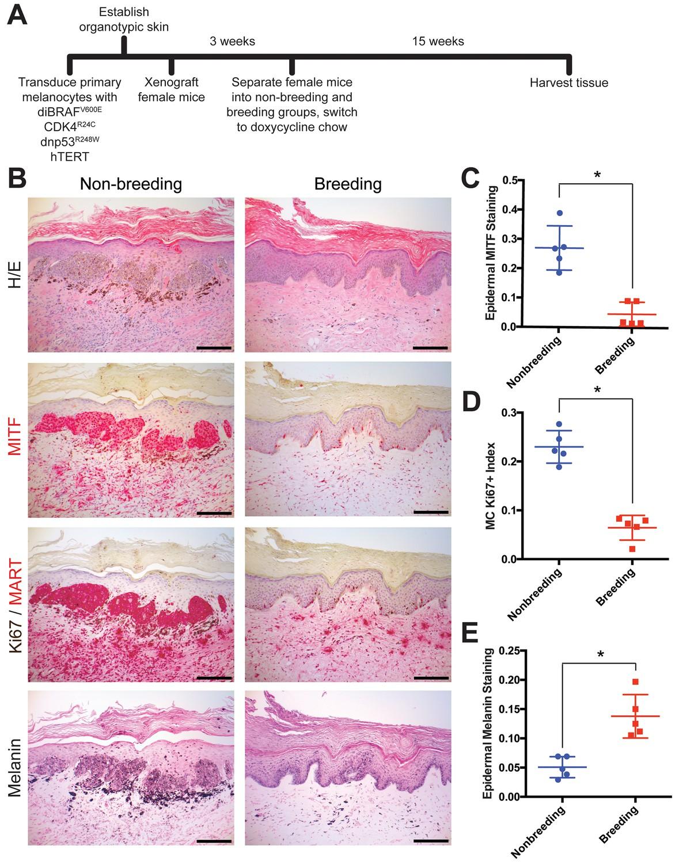 Activation of G protein-coupled estrogen receptor signaling inhibits ...