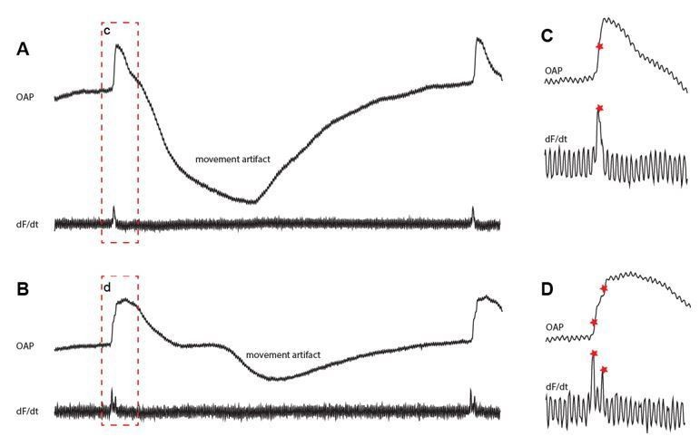 Specialized Impulse Conduction Pathway In The Alligator Heart Elife