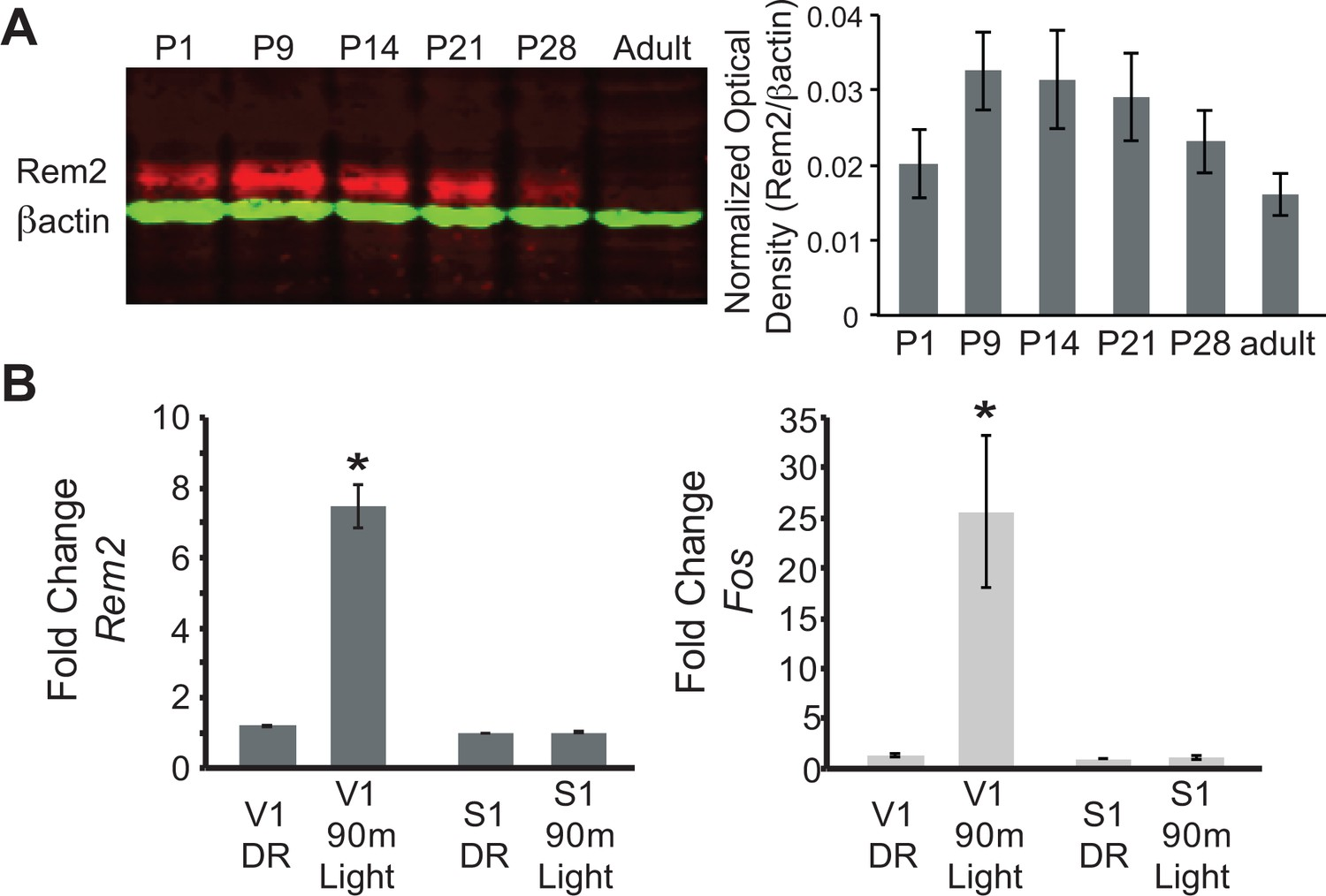 Rem2 Stabilizes Intrinsic Excitability And Spontaneous Firing In R Rc Circuit Diagram Expression Is Developmentally Regulated Activity Dependent