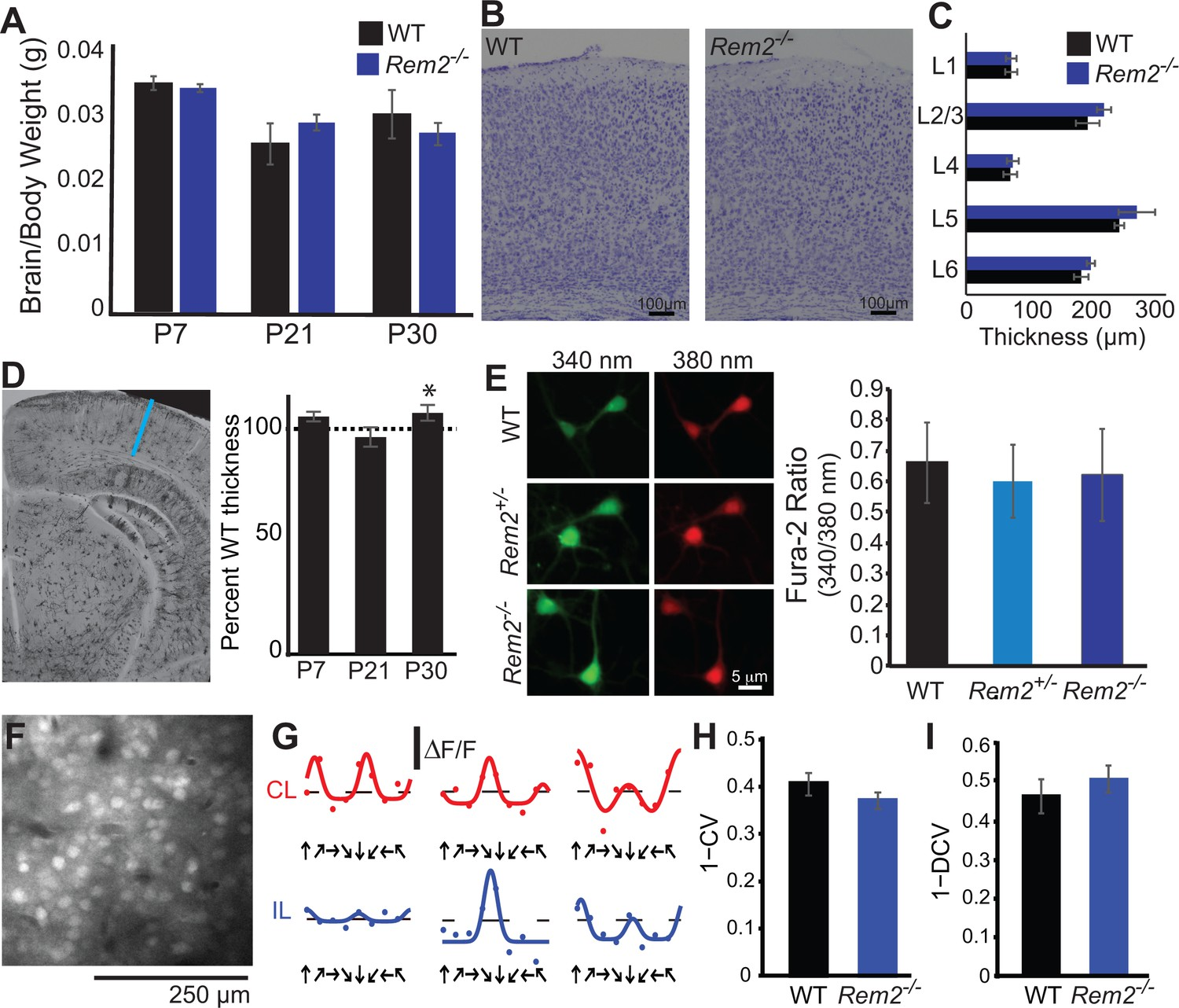 Rem2 Stabilizes Intrinsic Excitability And Spontaneous Firing In Mains High Low Voltage Cut Off Circuit Using Ic 324 Explained Mice Display No Gross Anatomical Or Function Cortical Abnormalities