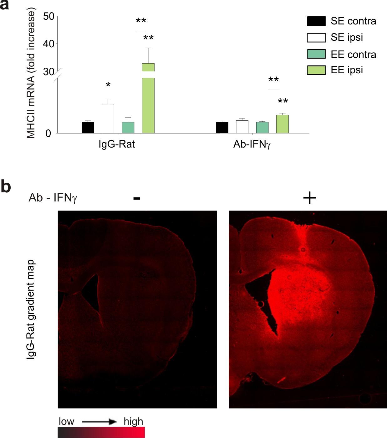 Environmental stimuli shape microglial plasticity in glioma | eLife