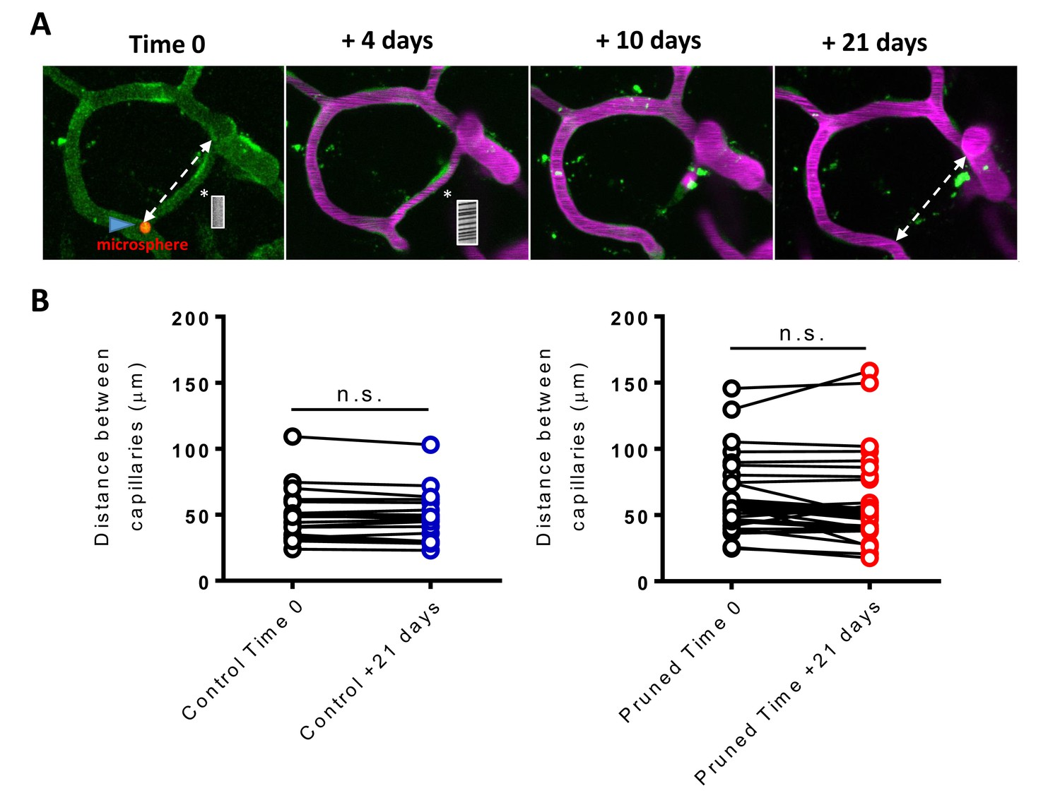 Vegf Signaling Regulates The Fate Of Obstructed Capillaries In Mouse Shear Moment Diagram Distributed Load Capillary Pruning Does Not Alter Adjoining Position