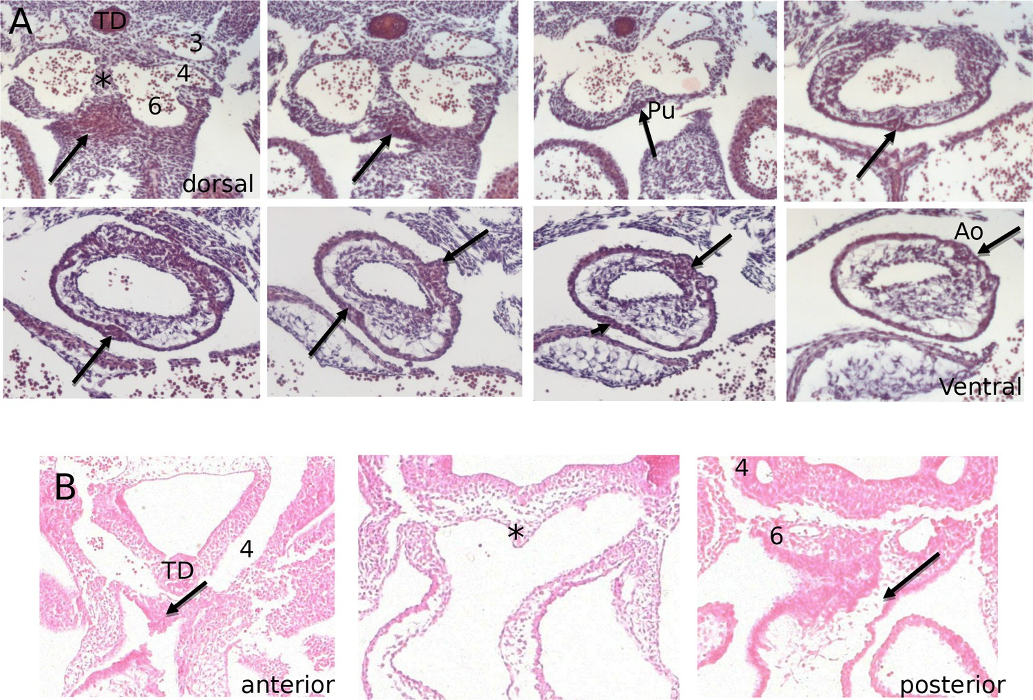 A Novel Source Of Arterial Valve Cells Linked To Bicuspid Aortic 2001 Jaguar Type X 25 Power Distribution Fuse Box Diagram Histological Appearance The Ic As They First Form