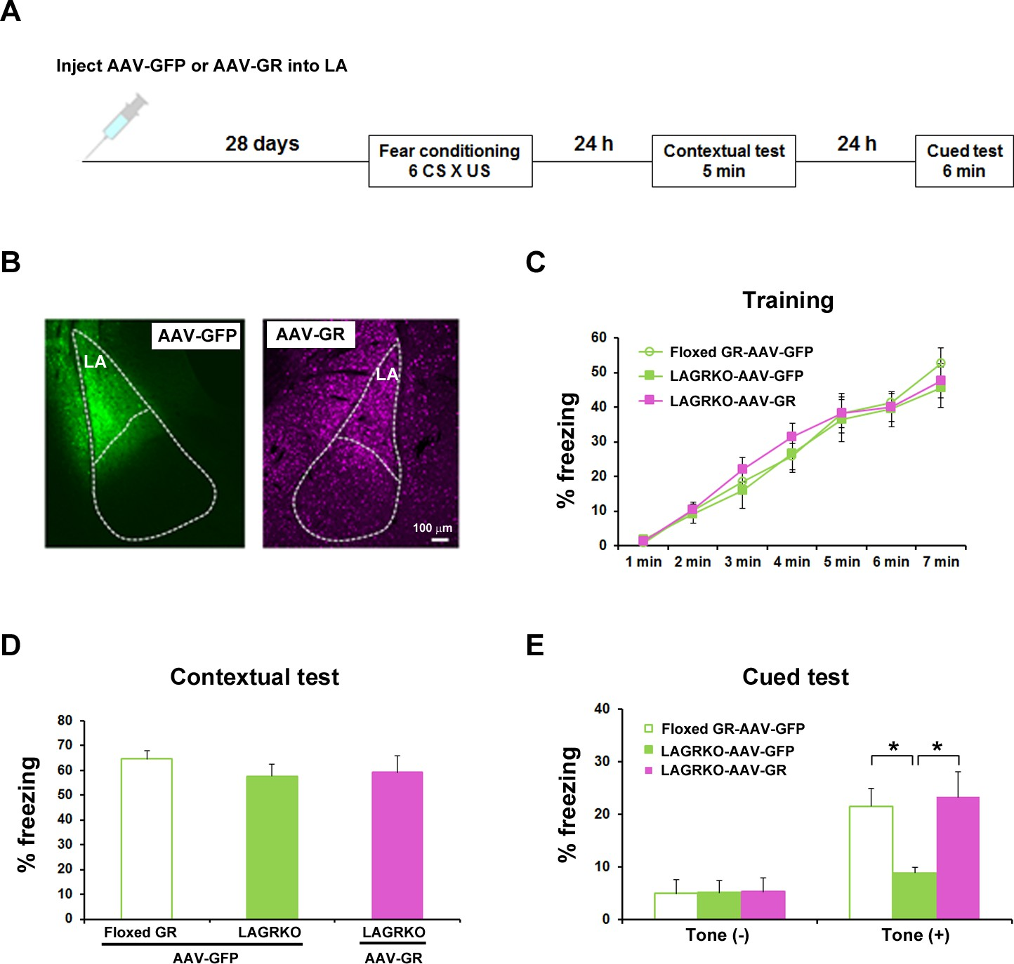 Glucocorticoid receptor-mediated amygdalar metaplasticity