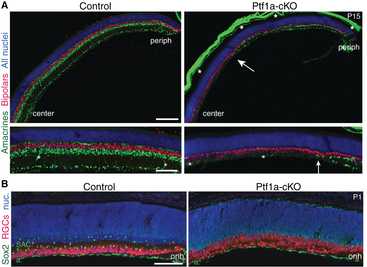 Formation Of Retinal Direction Selective Circuitry Initiated By Atb Motor Wiring Diagram Cell Types In Ptf1a Cko Mutants