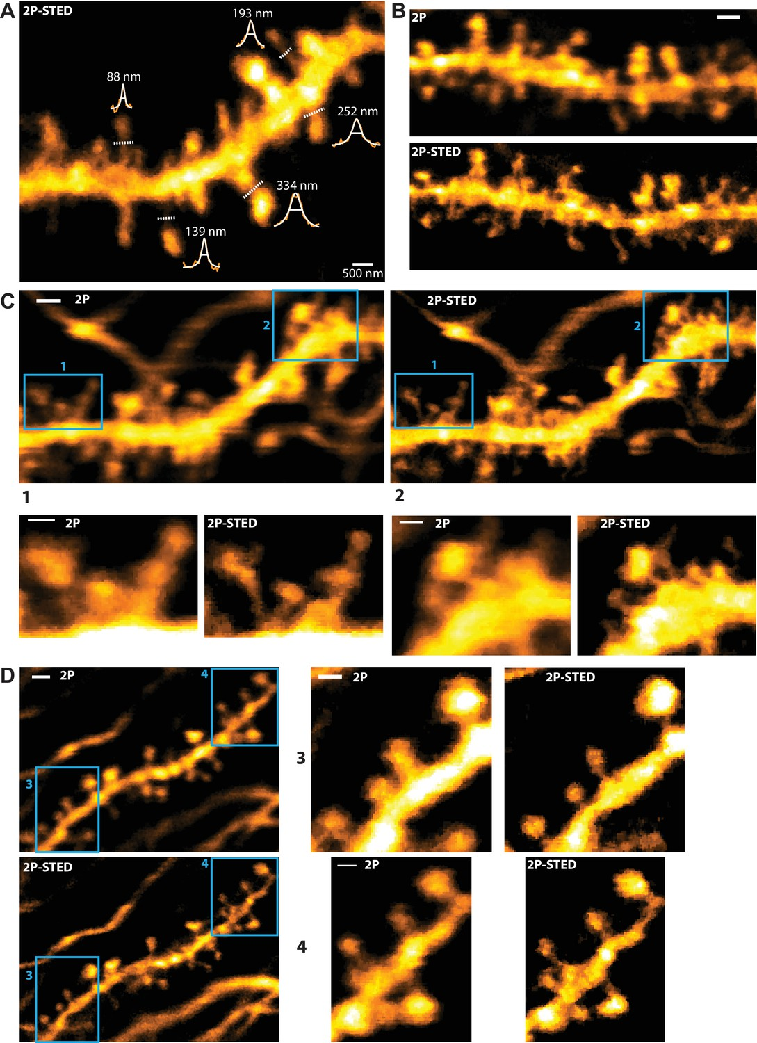 Chronic 2P-STED imaging reveals high turnover of dendritic