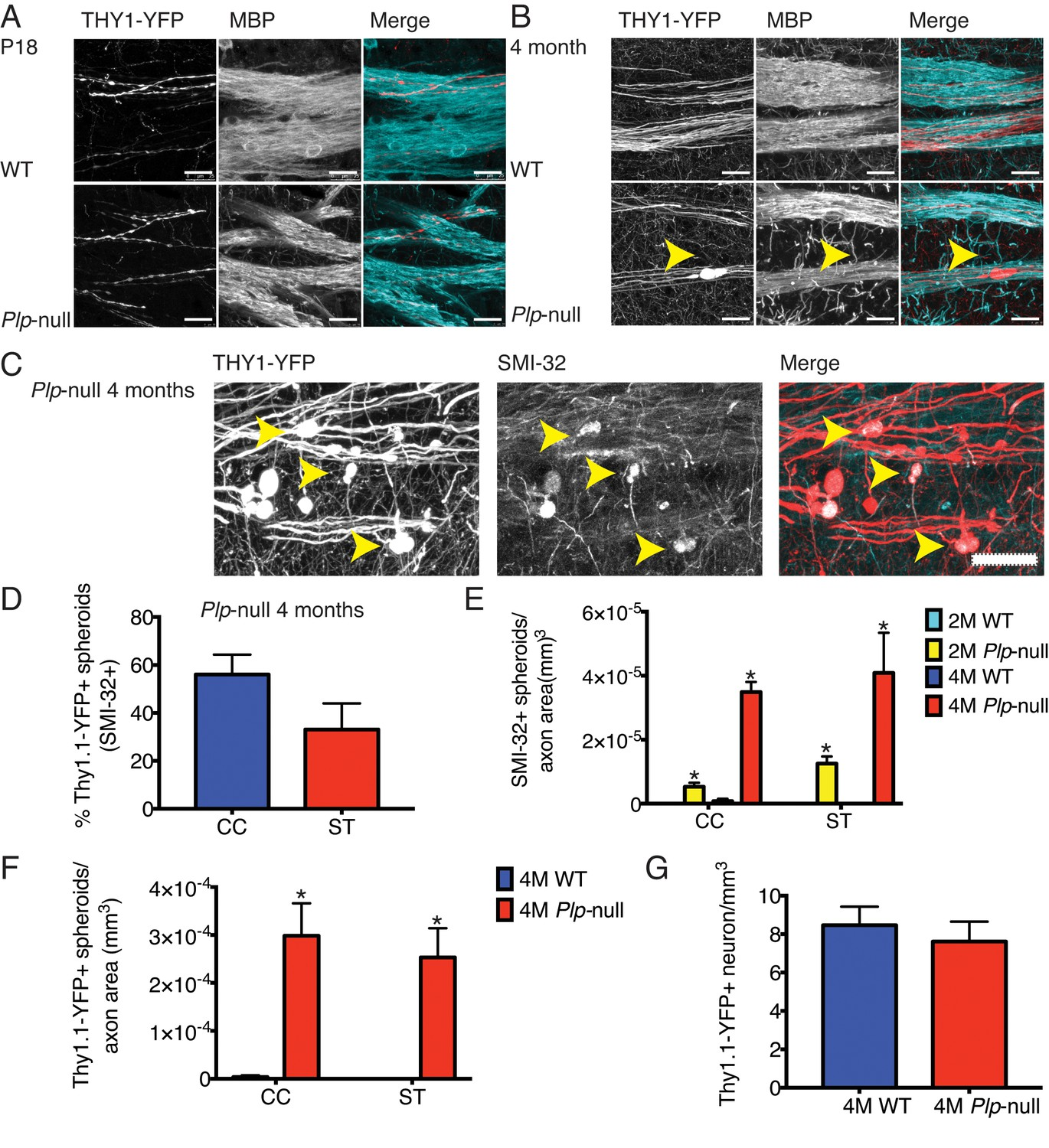 Mild Myelin Disruption Elicits Early Alteration In Behavior And 07 R1 Wiring Diagram Cortical Axon Plp1 Null Mice