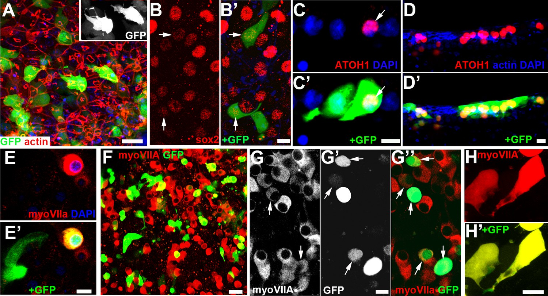 Regenerating hair cells in vestibular sensory epithelia from