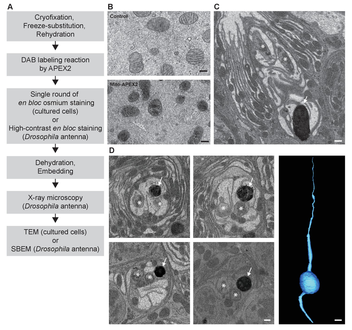High-quality ultrastructural preservation using cryofixation