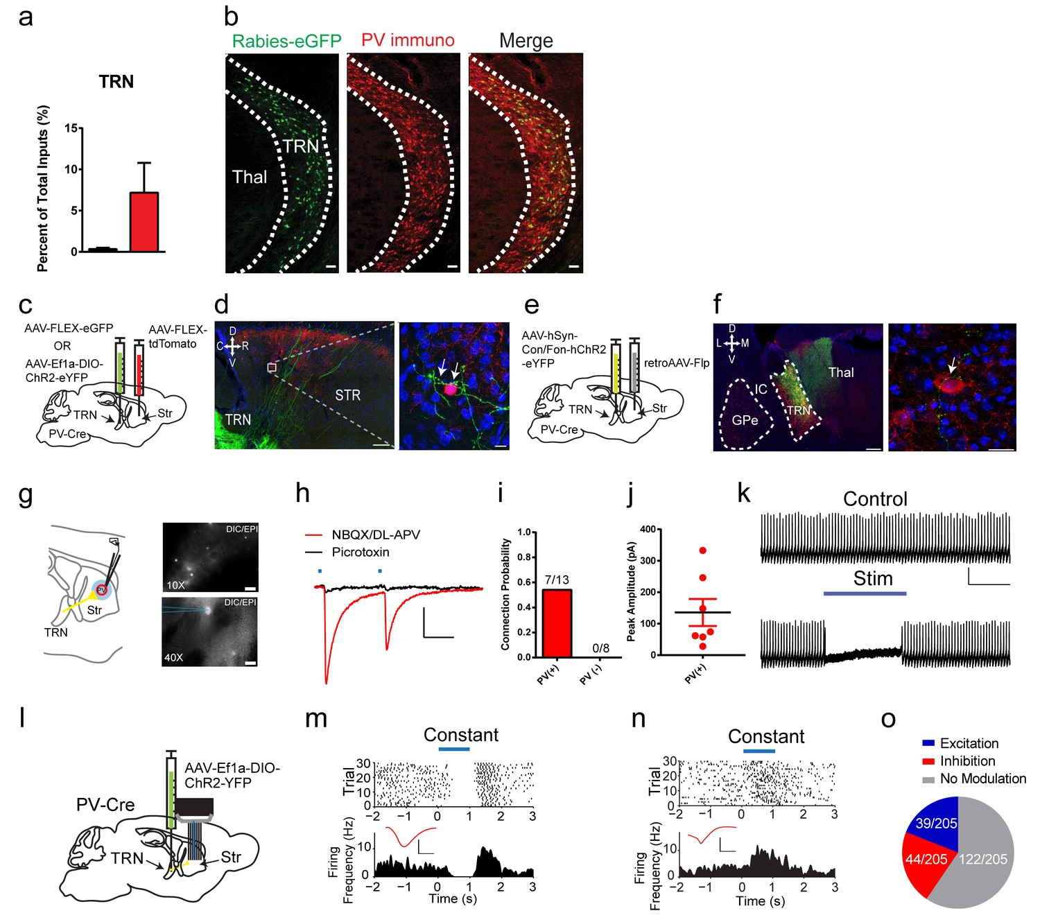 Differential Inputs To Striatal Cholinergic And Parvalbumin Wiring Diagram For Dean Ml 2 Tones 1 Volume A Projection From Thalamic Reticular Nucleus Pv Interneurons