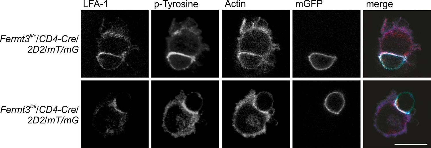 Differential requirement of kindlin-3 for T cell progenitor