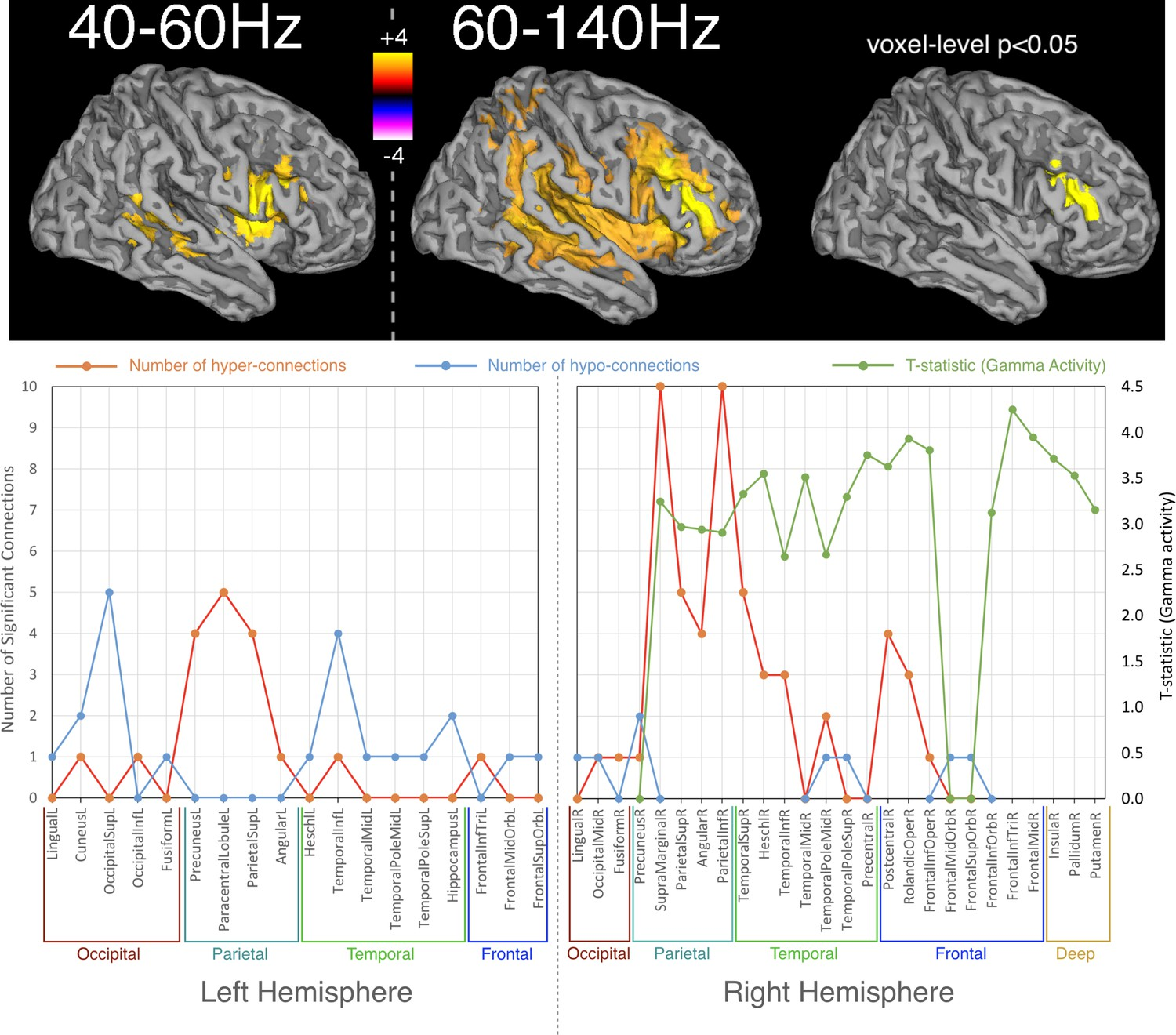Oscillatory hyperactivity and hyperconnectivity in young APOE-ɛ4