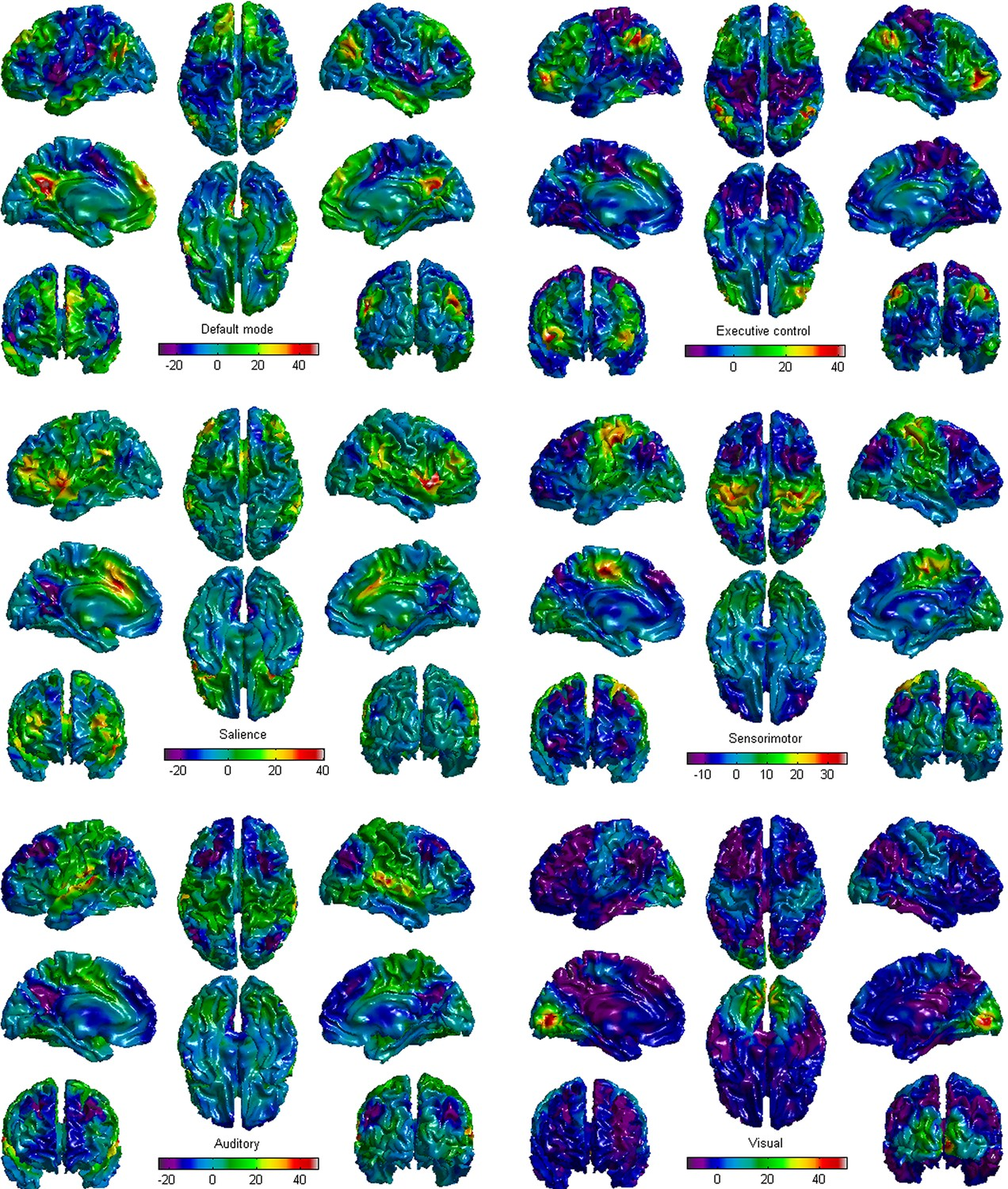 Prognostication Of Chronic Disorders Consciousness Using Brain Snap Circuit 750 The Six Functional Network Templates In This Study