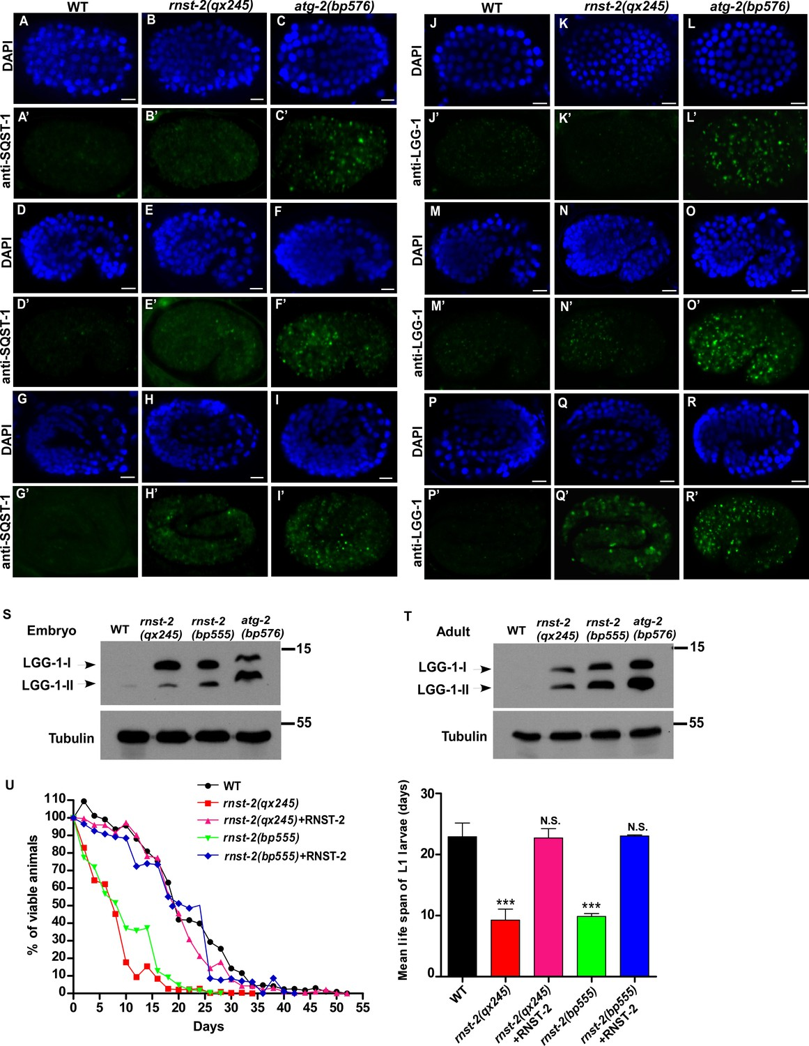 Autophagy-dependent Ribosomal RNA Degradation Is Essential