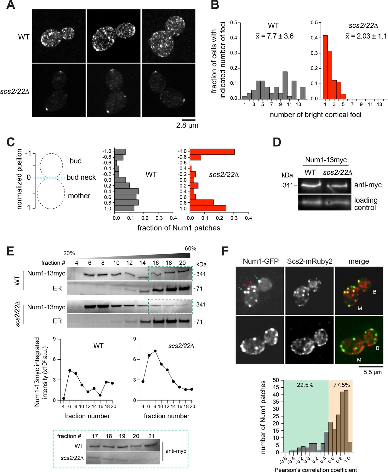 Enigmatic Chemical Tag Is Altered In >> Cortical Dynein Pulling Mechanism Is Regulated By