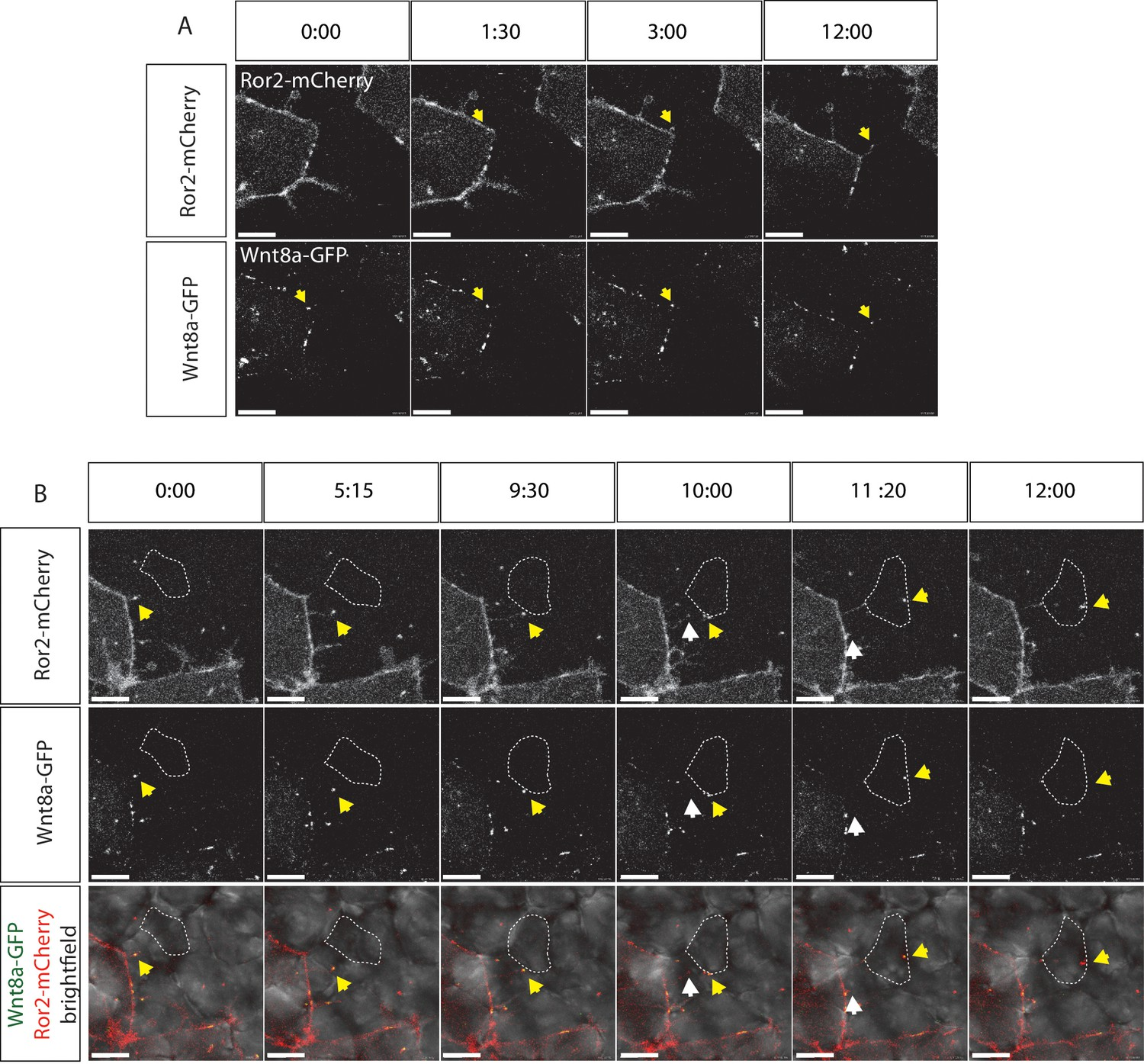 Wntpcp Controls Spreading Of Wntβ Catenin Signals By