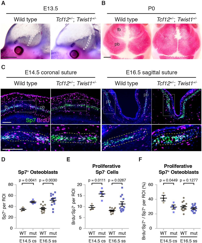 Altered bone growth dynamics prefigure craniosynostosis in a
