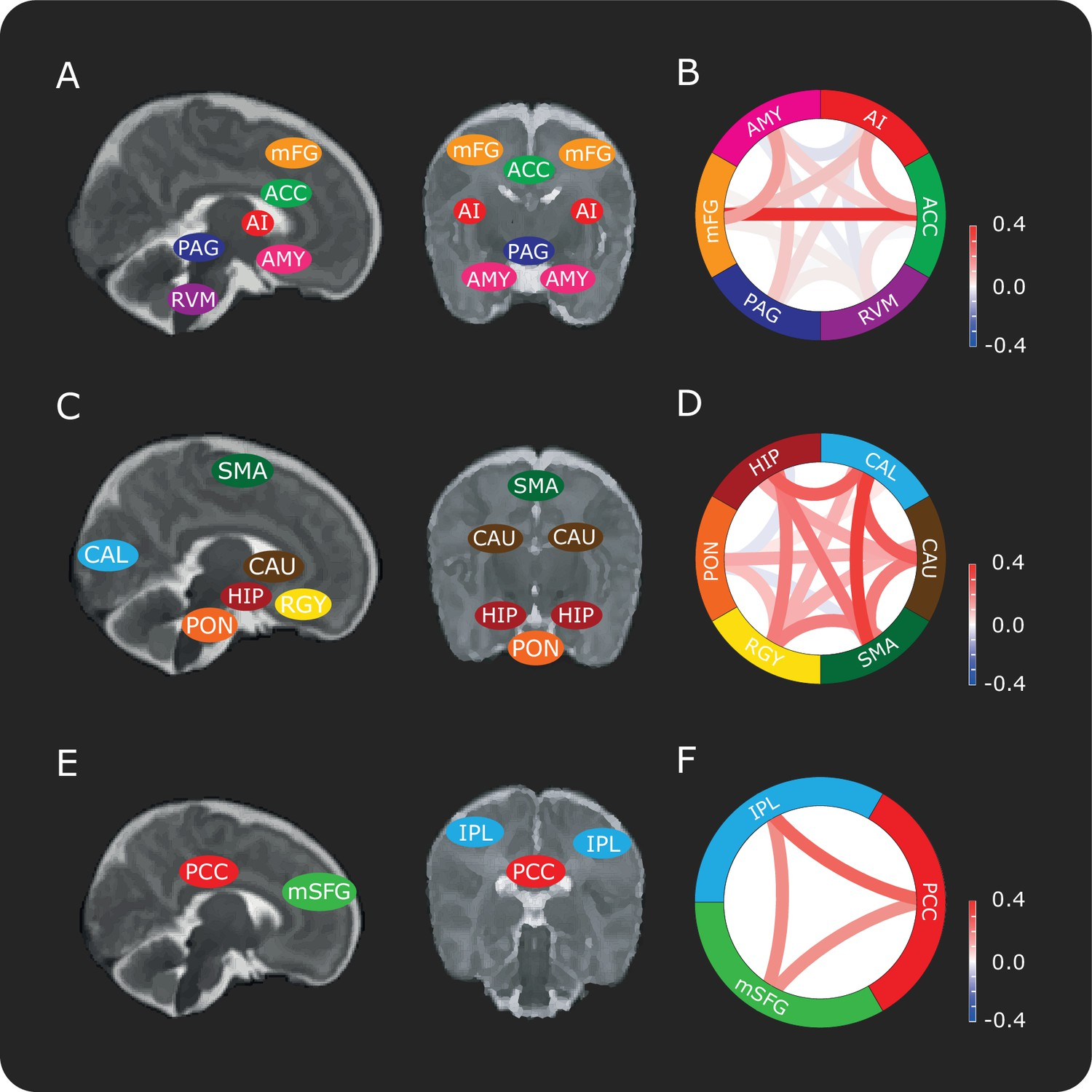 The Influence Of Descending Pain Modulatory System On Infant Electrical Symbols Circuit For Kids Dk Find Out Connectivity Between Brain Regions In Dpms And Control Networks Schematic Representation