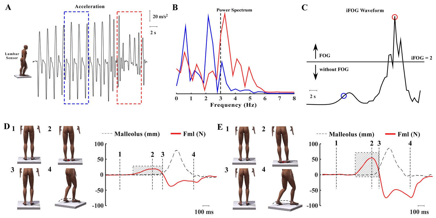 Effects Of Spinal Cord Stimulation On Postural Control In Fig 2 A Wiring Diagram For Ward And Reverse Jogging Circuit Figure Download Asset Open
