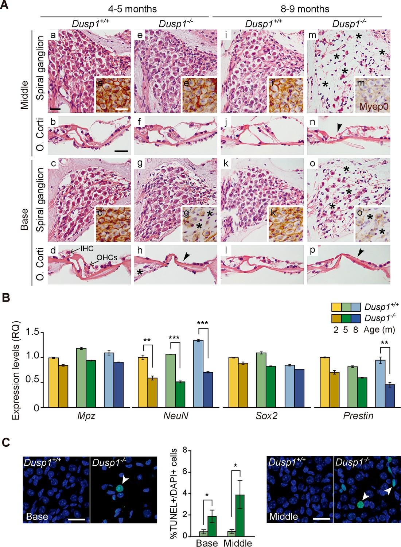 Deficit of mitogen-activated protein kinase phosphatase 1