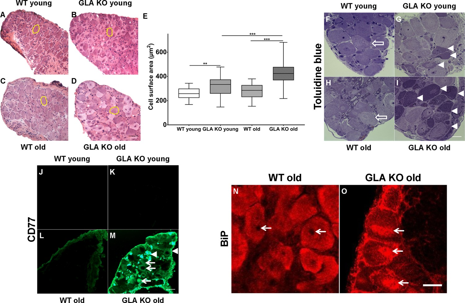 Characterization of small fiber pathology in a mouse model