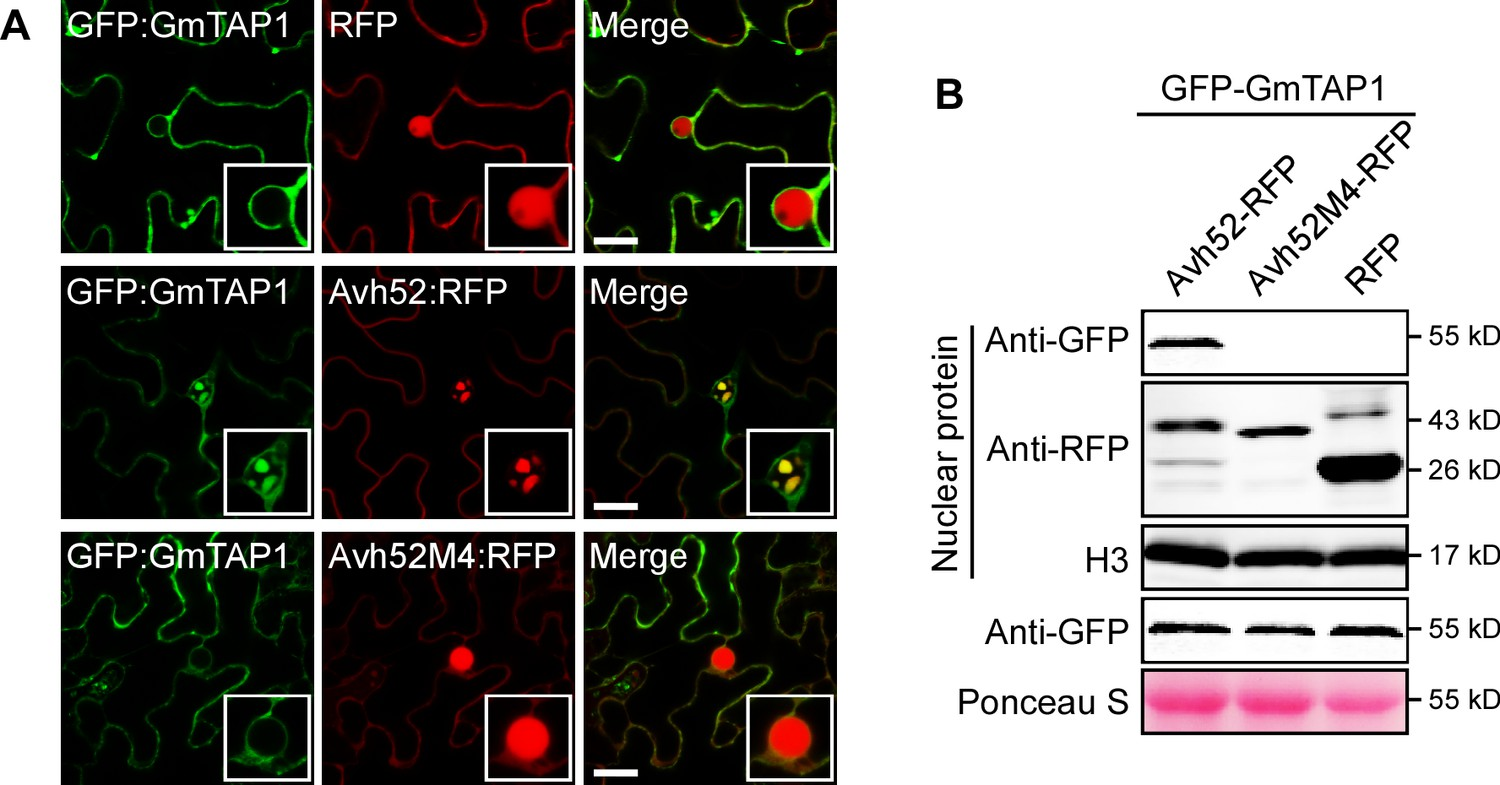 A Phytophthora effector recruits a host cytoplasmic