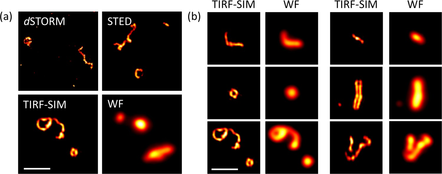 Structured illumination microscopy combined with machine