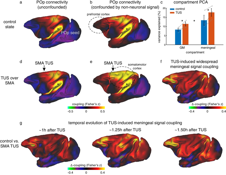 Offline impact of transcranial focused ultrasound on