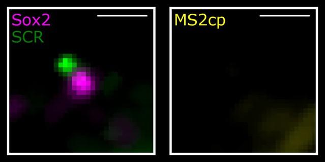 Live-cell imaging reveals enhancer-dependent Sox2 transcription in