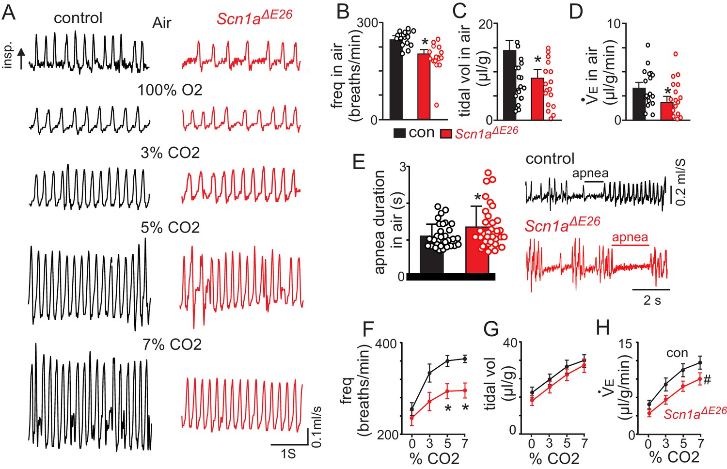 Disordered breathing in a mouse model of Dravet syndrome | eLife