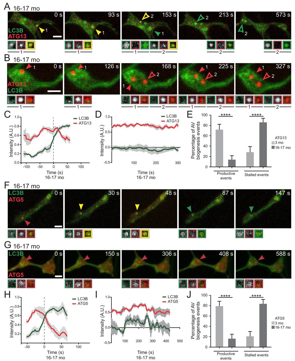 Expression of WIPI2B counteracts age-related decline in