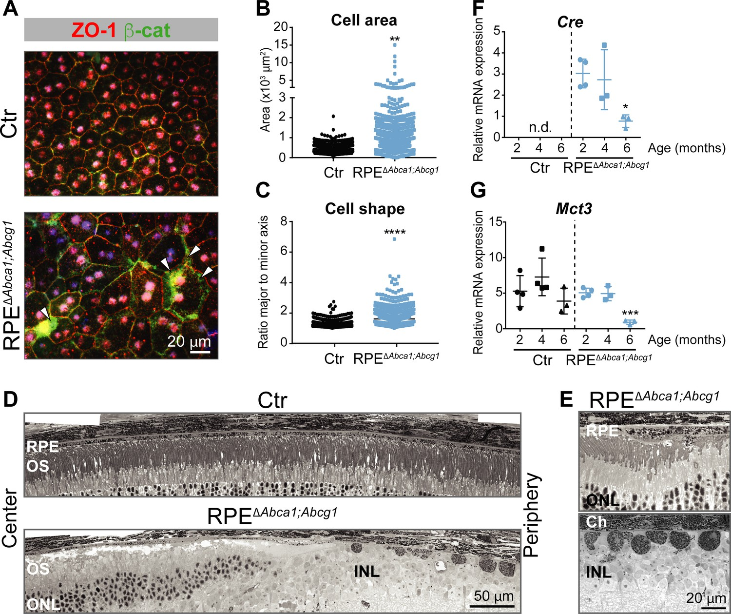 Impaired ABCA1/ABCG1-mediated lipid efflux in the mouse