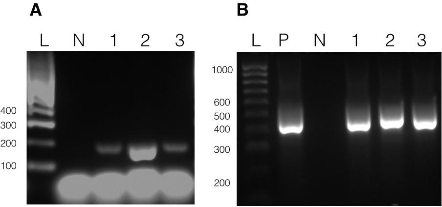 Genetic transformation of the dinoflagellate chloroplast | eLife