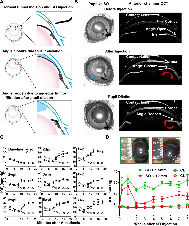 Glaucoma e chart: Full illustrated