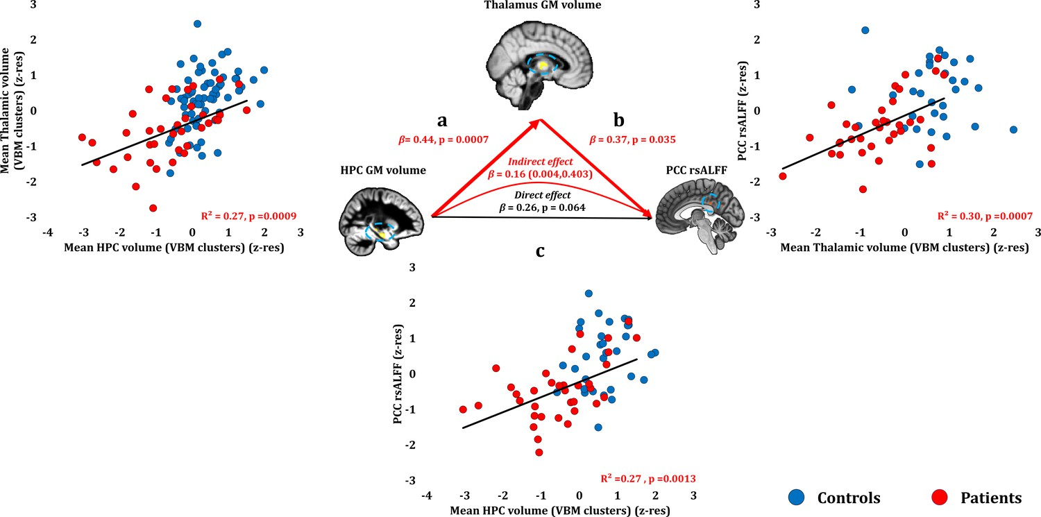 Network-wide abnormalities explain memory variability in hippocampal