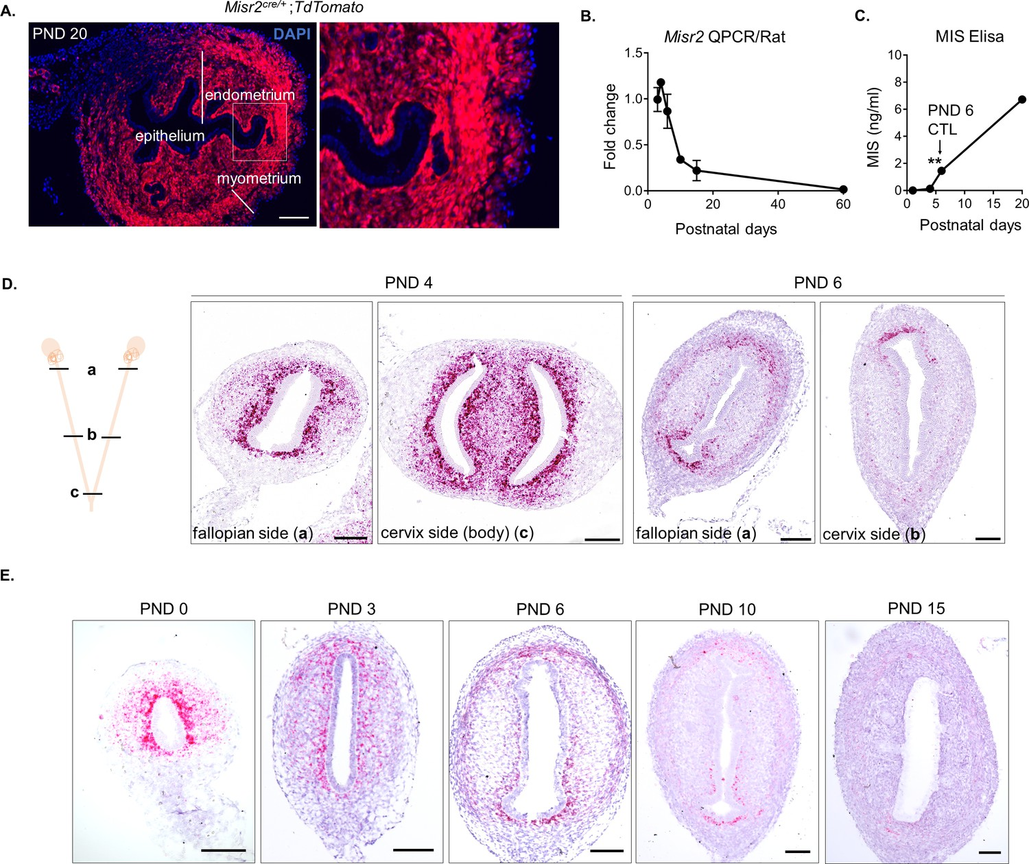 Single-cell sequencing of neonatal uterus reveals an Misr2+