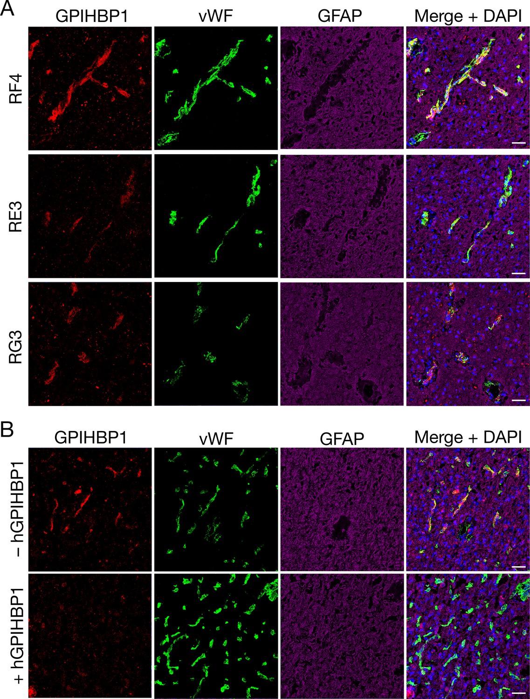 GPIHBP1 expression in gliomas promotes utilization of