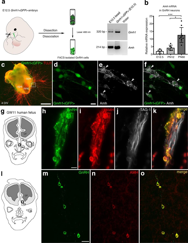 Defective AMH signaling disrupts GnRH neuron development and