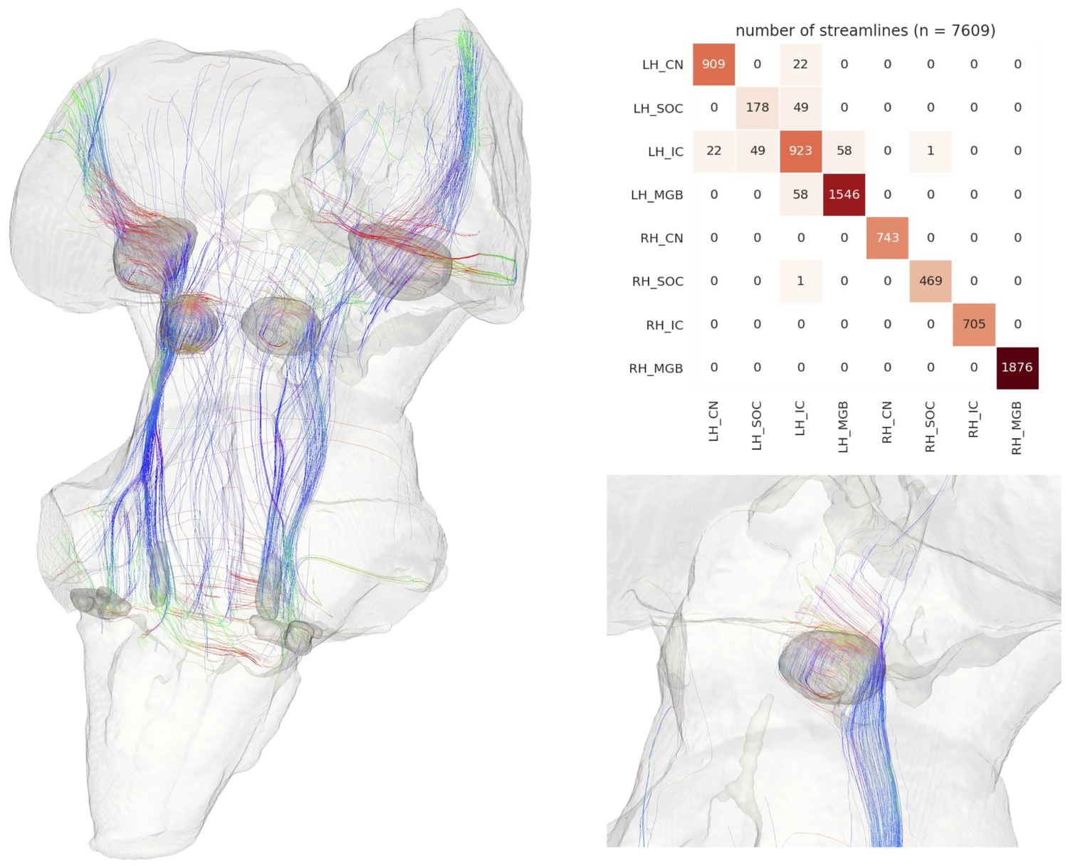 Mapping the human subcortical auditory system using